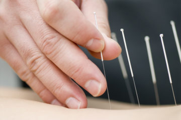 Dry Needling Brisbane