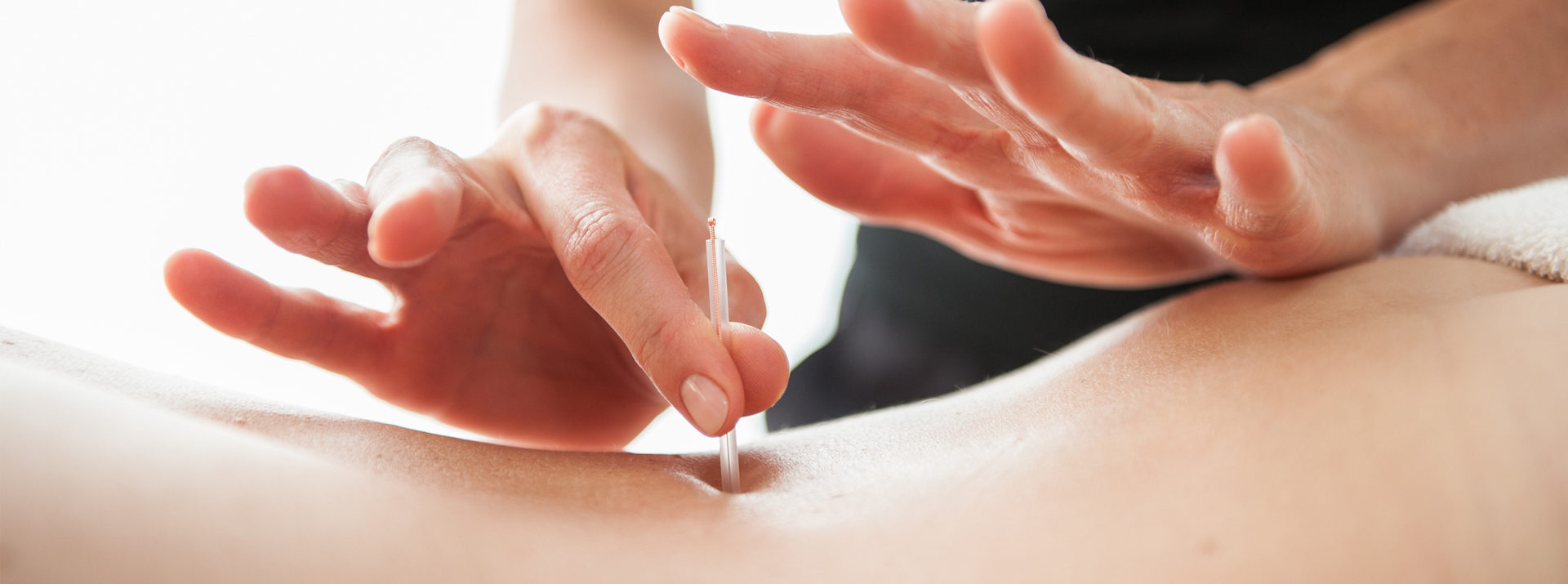 Acupuncture and Dry needling can help chronic pain