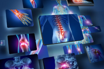 Musculoskeletal & Sports Physio Capalaba