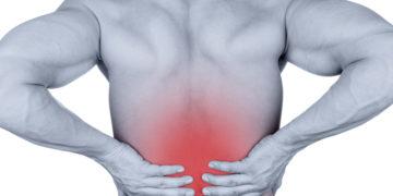 Acute Low Back Pain
